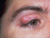 Penyebab, faktor dan cara perawatan gejala kalazion