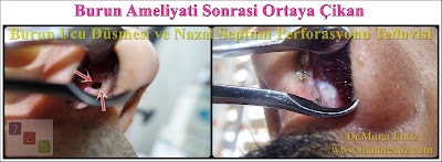 Nasal septal perforation - Repair of nasal septal perforation - Nasal septum perforation - Septal perforation - Surgical treatment of nasal septal perforation - Septal perforation repair surgery in Istanbul - Perforated septum treatment in Turkey