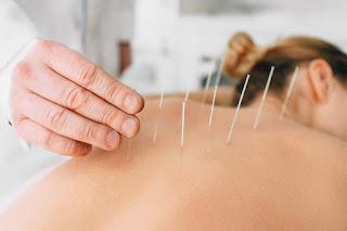 Saraf Terjepit Metode Akupuntur