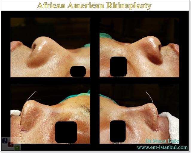 African American rhinoplasty,Thick skin nose job,Ethnic expert rhinoplasty surgeon,Black nose job,Ethnic Rhinoplasty Istanbul,