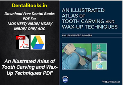 An Illustrated Atlas of Tooth Carving and Wax-Up Techniques PDF