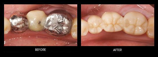 Bruxzir case at dental clinic Jamnagar