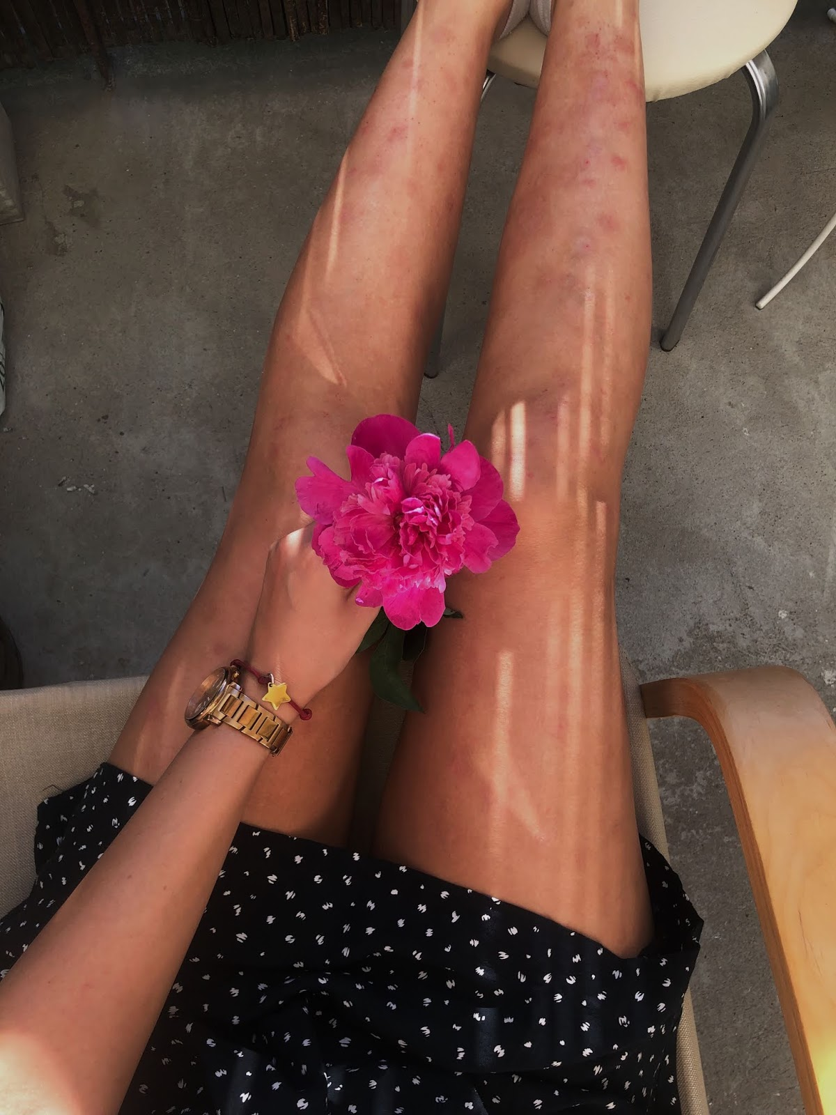 Jak golić nogi przy łuszczycy? Mój sposób!