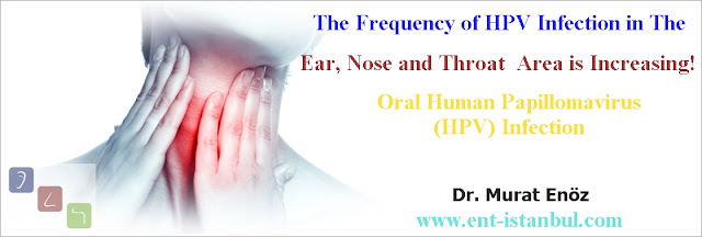 Papilloma in the tongue, Throat papilloma, HPV infection in the mouth, Tonsil papilloma, Vocal cord papilloma, Larynx papilloma, Soft palate papilloma