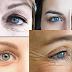 Reduce under eye wrinkles in just 8 days