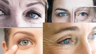 How to reduce under eye wrinkles
