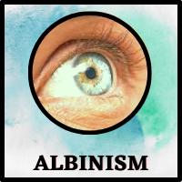 Albinism eye , Ocular Albinism, Blue-green eyes, absence of pigment in eye, absence of melanin in eyes