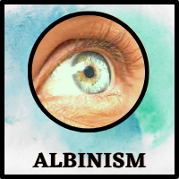 Ocular Albinism - Its Causes, Symptoms, Treatment, Prevention & An Amazing Fact.