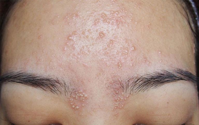 Thoa sản phẩm lên những vùng da hay nổi mụn để kiểm tra khả năng gây tắc lỗ chân lông của sản phẩm đó.