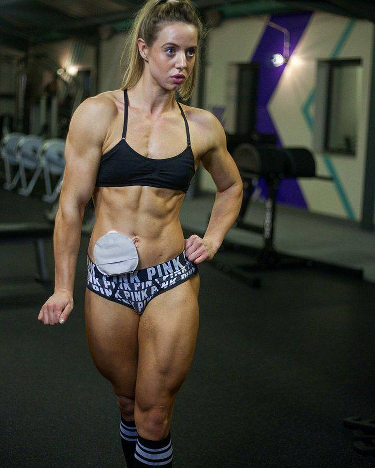 Female bodybuilder breaks stigma over Ulcerative Colitis