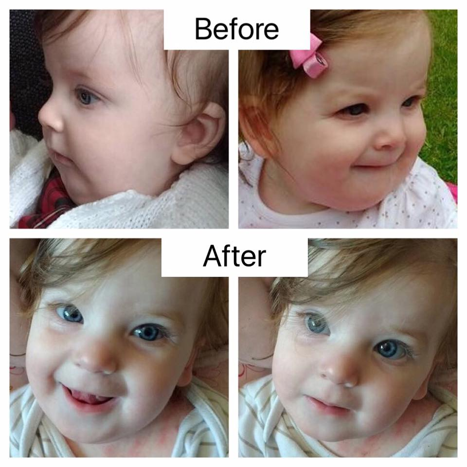 Analytical Armadillo Upper Lip Tie Treatment In Infants