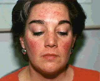почему аллергия на лице