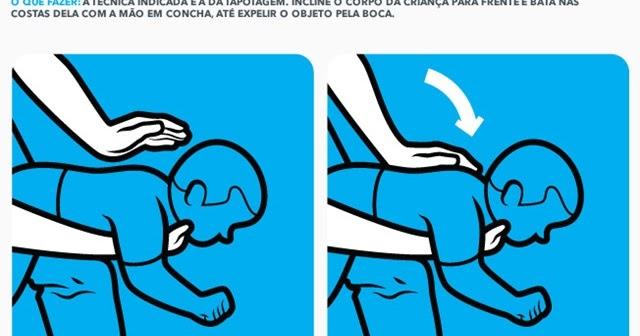 5947fc6642d TAPOTAGEM    FISIOTERAPIA RESPIRATÓRIA EM CRIANÇAS