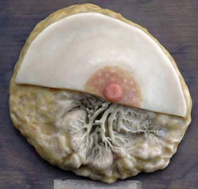 ورم-في-غدد-الثدي