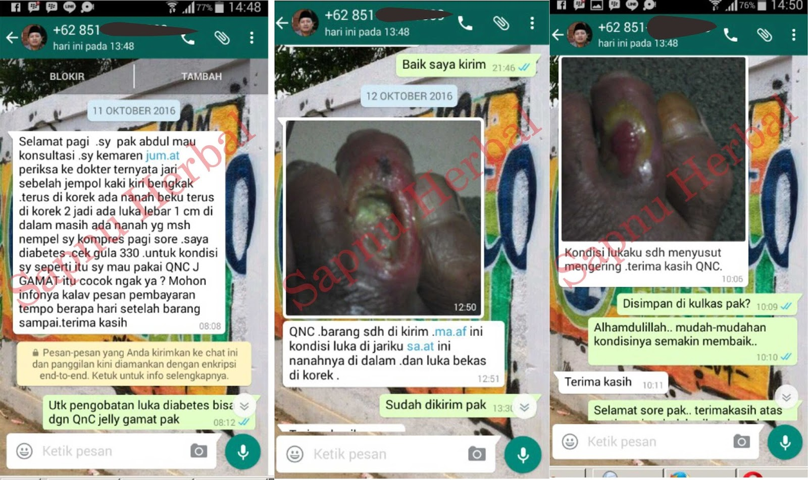 Testimoni QnC Jelly Gamat Luka Diabetes