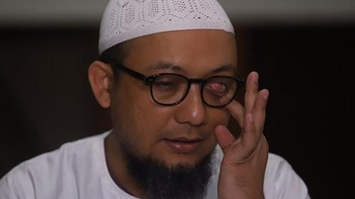 Sindir Keras Novel Baswedan, Politikus PDIP: Akal Bulus Manusia Picik