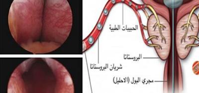 أمراض تصيب الرجال تؤثر على قدراتهم الانجابيه