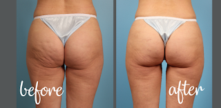 how to get rid of cellulite,get rid of cellulite,how to get rid of cellulite on thighs,how to get rid of cellulite on legs,how to get rid of cellulite on thighs and bum,how to reduce cellulite,cellulite,cellulite on thighs,how to get rid of cellulite fast,how to get rid of cellulite on back of thighs,how to get rid of cellulite on stomach,get rid of cellulite fast