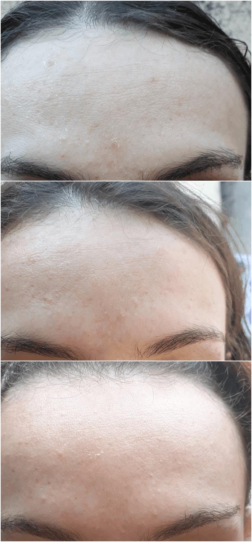 Sérum Intensivo Multiclareador Natura antes e depois