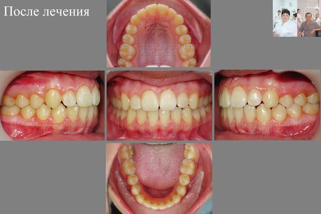 Ретинированный зуб. Прикус пациента после лечения брекетами