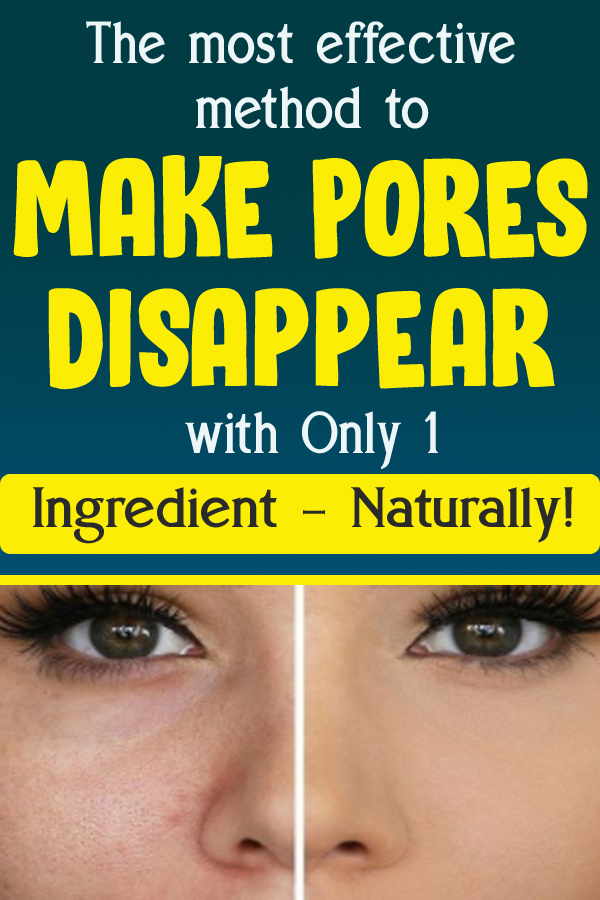 The most effective method to Make Pores Disappear with Only 1 Ingredient – Naturally!
