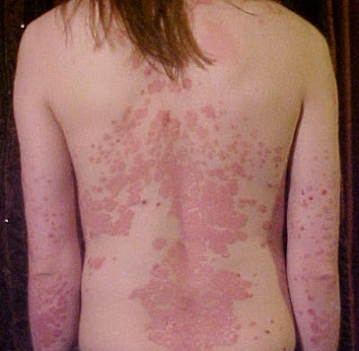 characterized by an accelerated division  Psoriasis Definition - Psoriasis Causes And Treatment