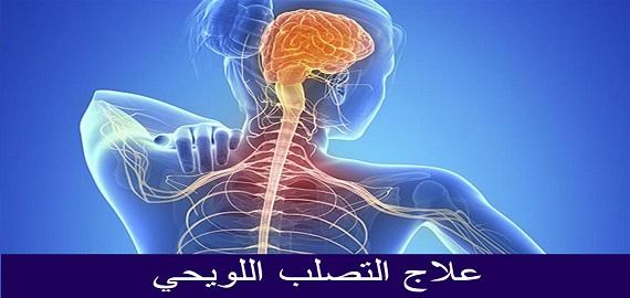 علاج التصلب اللويحي