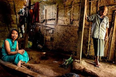 Saimun ha vissuto con una gamba incastrata in una morsa di legno per cinque anni