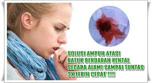 Obat Untuk Mengobati Penyakit Batuk Yang Susah Di Sembuhkan