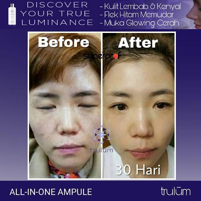 Bebas Bopeng Bekas Jerawat, Flek Hitam Tanpa Harus Laser Atau Ke Tempat Skin Care Di Kuta Malaka Aceh Besar