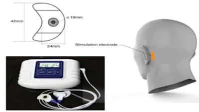 経皮的乳様突起電気刺激