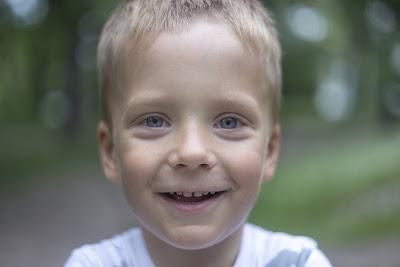 zabieg podcięcia wędzidełka u dentysty