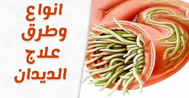 علاج الديدان بالاعشاب وأعراض الإصابة بالديدان وأسباب الاصابة وطرق الوقاية