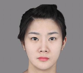 Wonjin Plastic Surgery Korea's Nostril Reduction For Your Ideal Nose