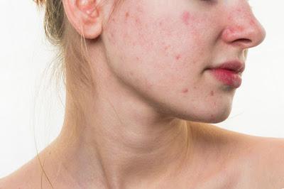 Những cách trị liệu mụn tiềm ẩn nguy cơ gây ung thư da cao