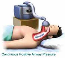 Continuous Positive Airway Pressure therapy has been presently available curing therapy for obstructive sleep apnea some time now. The CPAP petite device gives the pressure of air into the mask, which shoves the air passage open and thus enables the sufferers to help respire more effortlessly throughout their sleeping time at night.