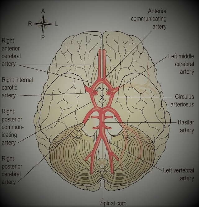 Brain Stroke- Types and Causes of Stroke.