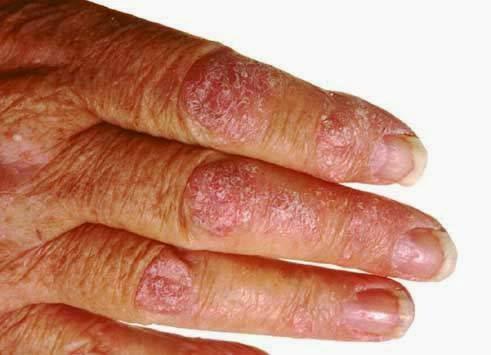 psoriasis glutenfri kost