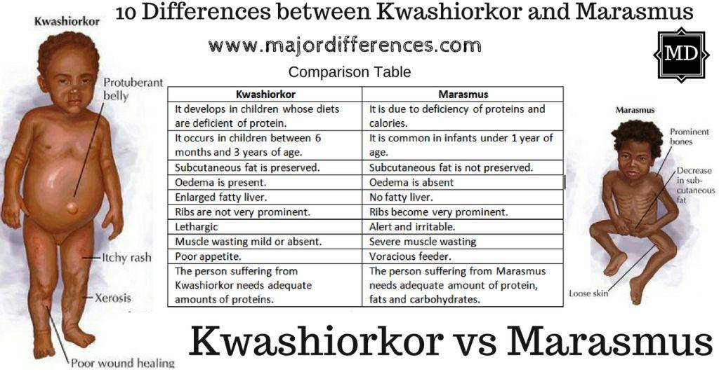 Difference Between Marasmus And Kwashiorkor In Table Form