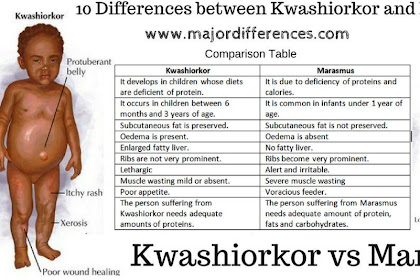 Difference Between Kwashiorkor And Marasmus
