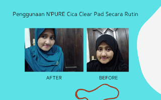 Before After Pakai Skin Care