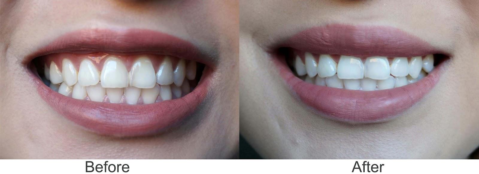 Joyce Lau My Teeth Whitening Routine