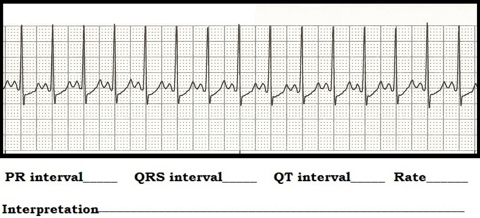 Float Nurse: ECG Rhythm Strip Quiz 89: Interval measurements