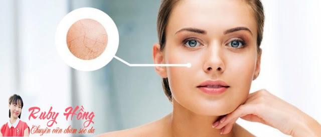 Da khô do đâu và làm sao để khắc phục?