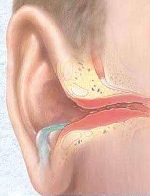 Infecciones oído externo