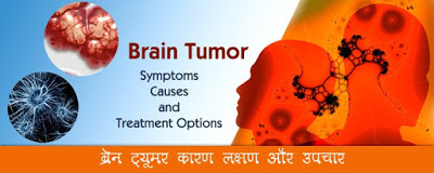 ब्रेन ट्यूमर लक्षण-कारण-उपचार, Brain Tumor Symptoms and Treatment, Brain Tumor kya hota hai, ब्रेन ट्यूमर क्या होता है, brain tumor ke lakshan, brain tumor ki janch, brain tumor ke karan, ब्रेन ट्यूमर की जानकारी, brain tumor jankari