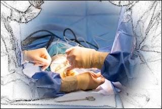 pareri fourm operatia de ombilicoplastie preturi recuperare