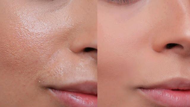 Peau grasse : 5 recettes beauté pour contrôler la brillance du visage