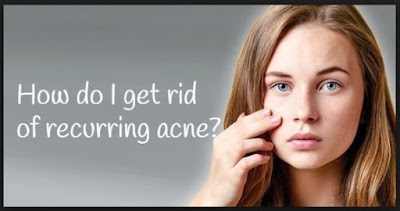 A Natural Approach Tо Managing Acne