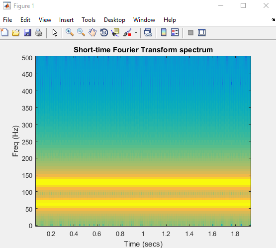 Short-time Fourier Transform spectrum in MATLAB